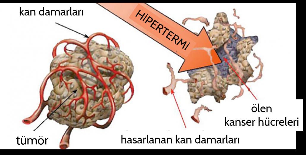 Kanser tedavisinde hiperterminin etki mekanizmaları