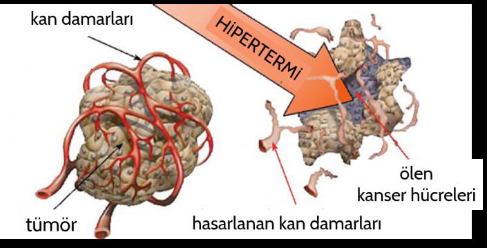 Lancet oncolgy dergisinde yayımlanan bu değerli çalışma, hiperterminin kanser tedavisinin önemli bir tamamlayıcısı olduğunu kanıtlamakta